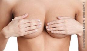 Breast Lift (Mastopexia)